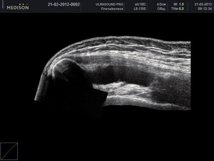 boka ízületek fáj, mit kell tenni, hogyan kell kezelni a csípőízület fáj, hogyan lehet enyhíteni a fájdalmat