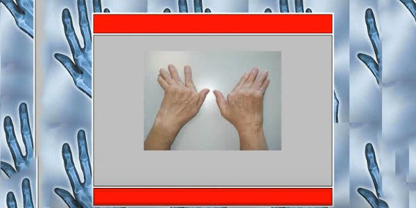 îndepărtați umflarea din articulația încheieturii inflamație osoasă