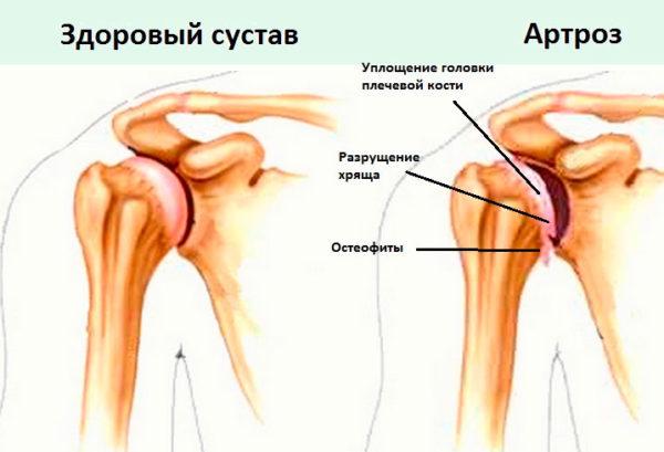 szindrómák a vállízület fájdalmáról