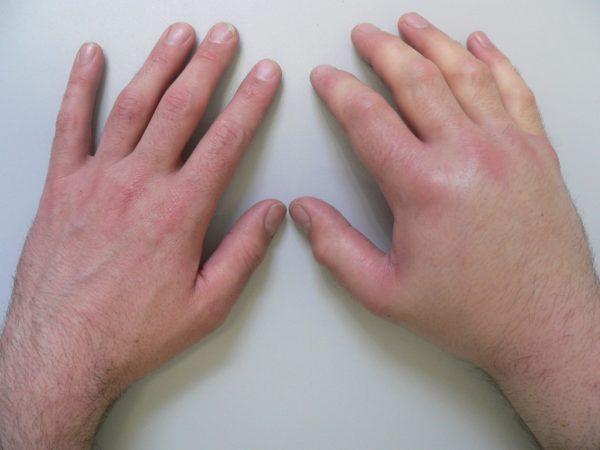 inflamația medicamentoasă a articulației degetului mare
