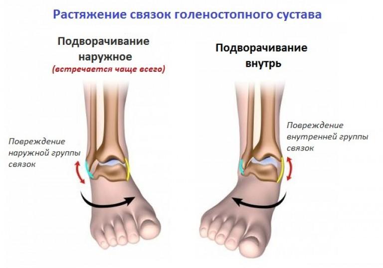 Tratamentul cu lacrimă de gleznă)