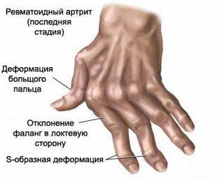 mi a teendő, ha a kis ujjízület fáj