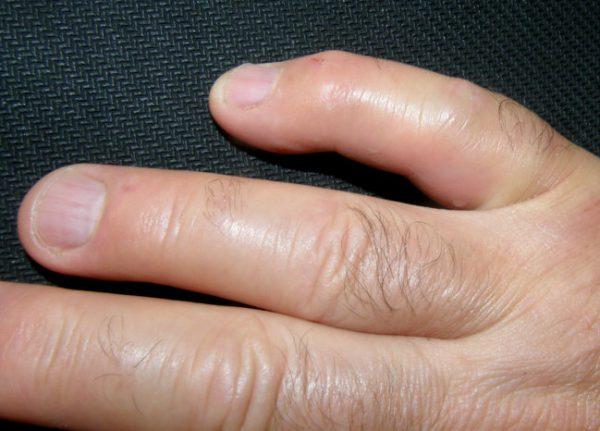 az ujjízület duzzanatát okozza a kezelés)