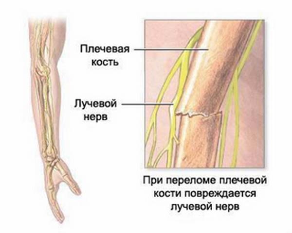 fractură a articulației umărului