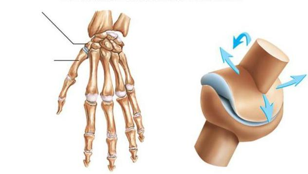 durere la prima articulație metacarpială a mâinii