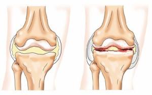 de ce se crăpa articulația genunchiului