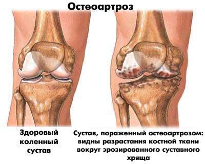 2. szakasz deformálja a térd osteoarthritisét)