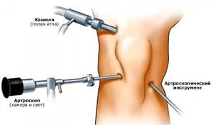a térdízület 1. fokozatának gonarthrosis kezelése)
