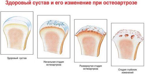a jobb térdízület második fokozatának doa gyógyszerek intramuszkulárisan, oszteokondrozissal