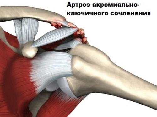 ízületi gyulladás tisztítása a push-upok ízületei fájnak